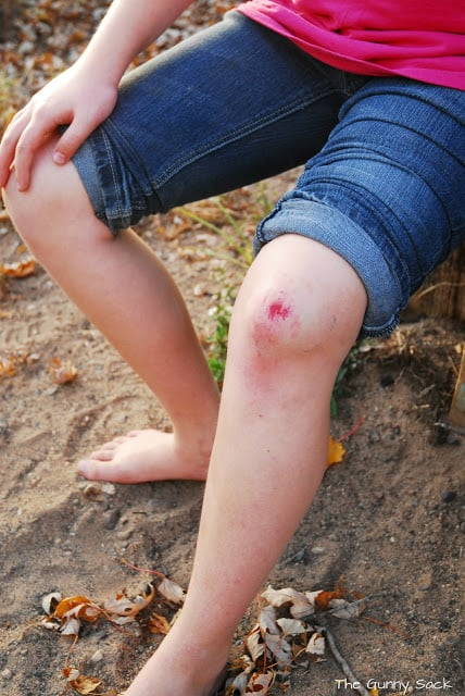 scratched knee